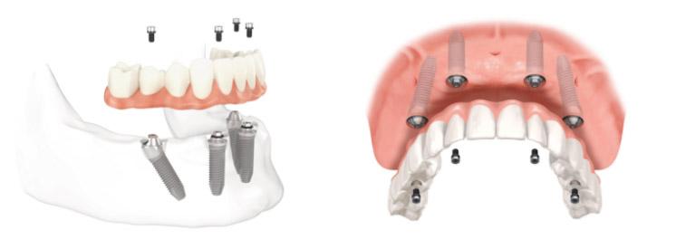 Implantologia a Pomezia | Impianti dentali | Althea Biomedica