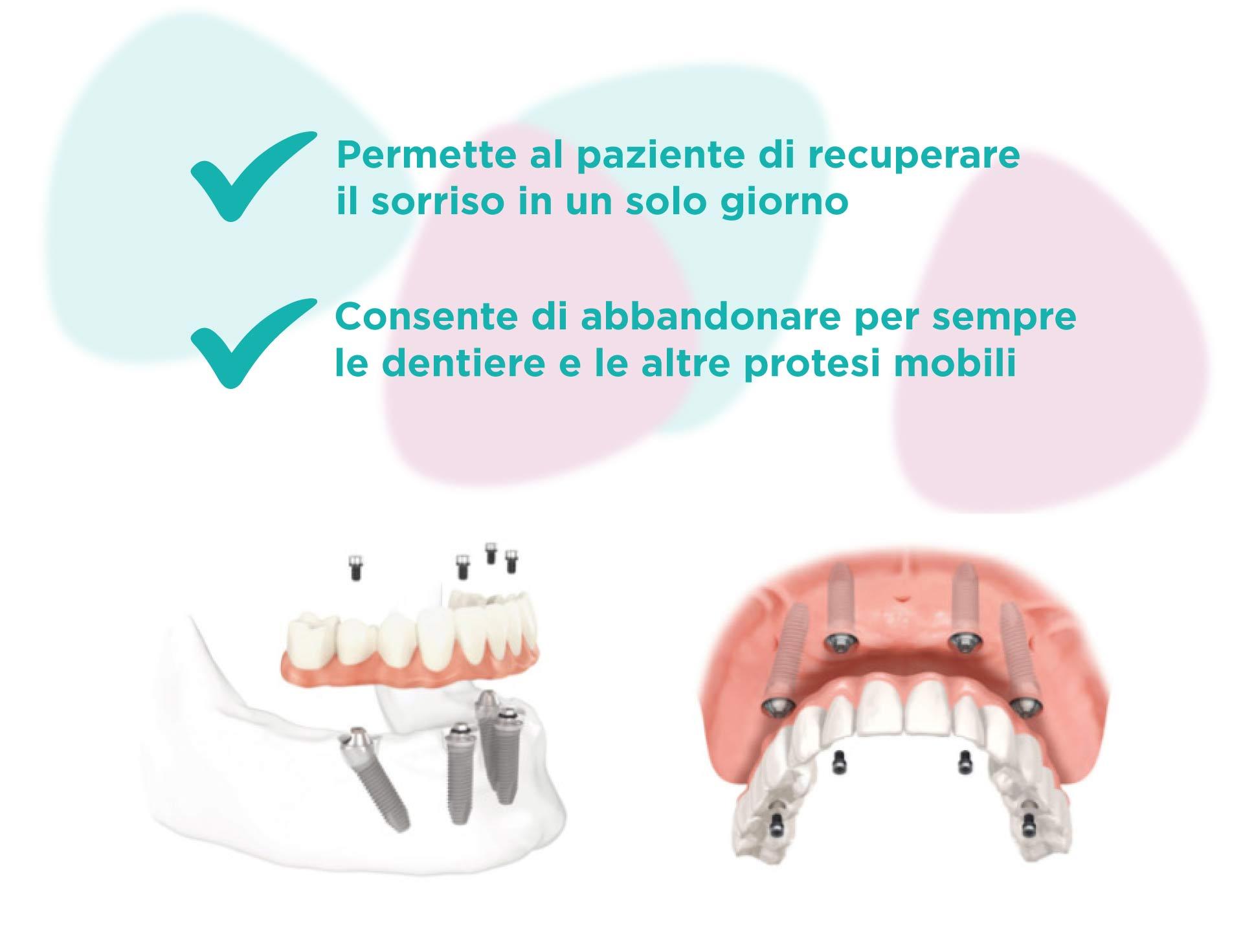 denti fissi su 4 impianti