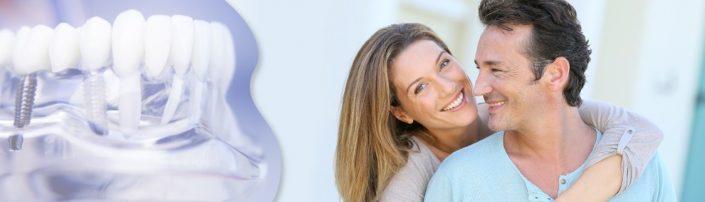 vantaggi impianti dentali